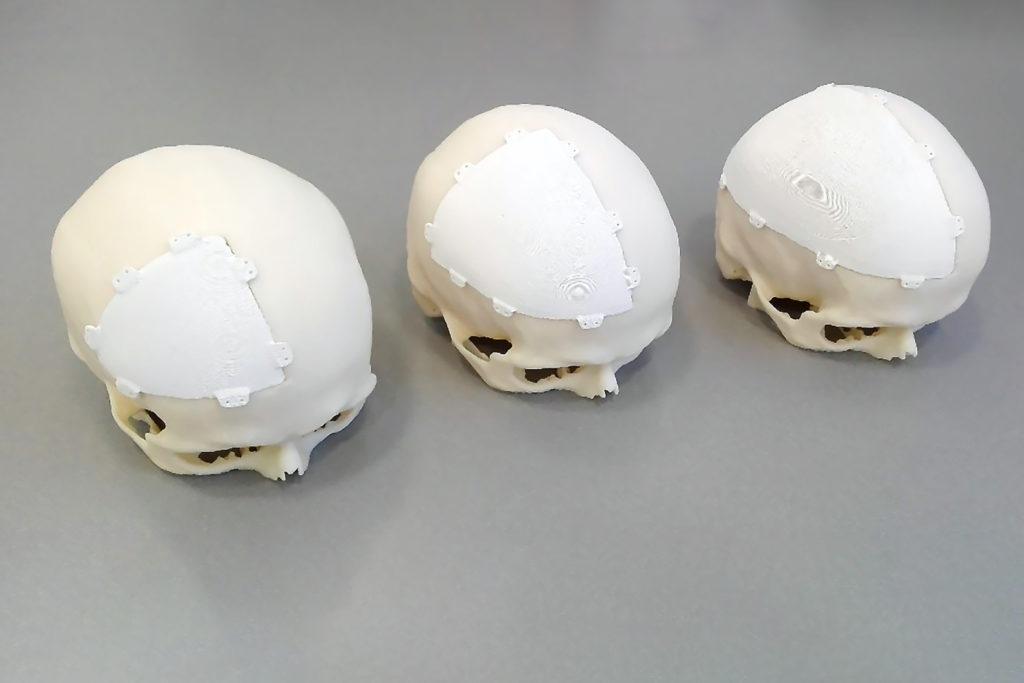 3d tisk zdravotnictví implantáty