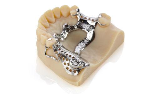 3d tisk pro zubaře